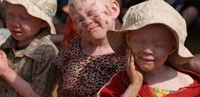 Albino killings on the rise in Malawi