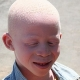 150 albinos killed in Southern Africa violence